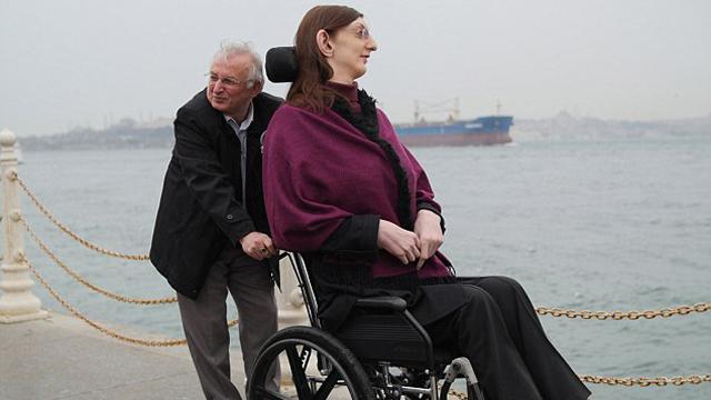 土耳其2.13米女孩因太高无法正常行走