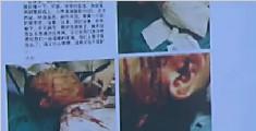 医生被醉汉打伤 穿病号服带伤抢救病人