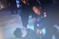 山东:铝水外溢7人受伤 记者遭厂方殴打