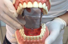 科学家:牙龈问题不可小视 其或可引发癌症