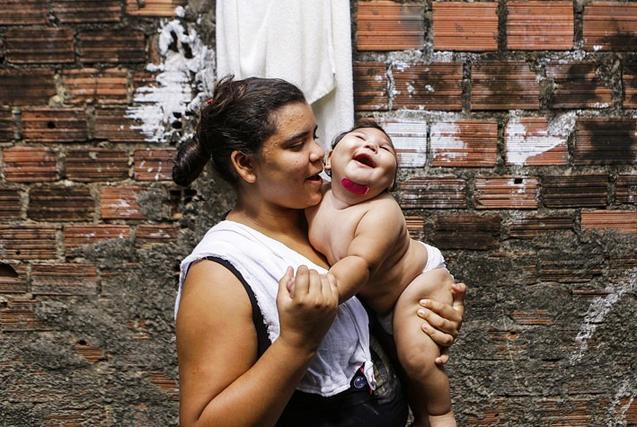 巴西寨卡阴影:贫民窟宝宝生命受小头症侵蚀