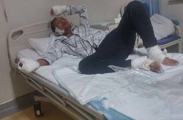 山东一公司铝水外溢7人受伤 记者遭厂方殴打(图)