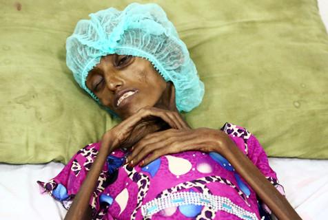 也门18岁女孩因营养不良状如骷髅