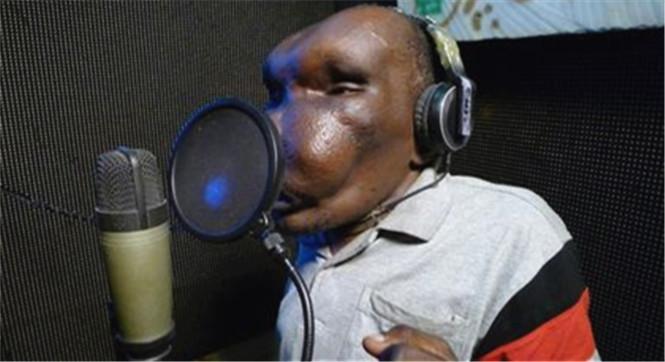 非洲一男子患病脸变形 不畏嘲笑成当红歌手