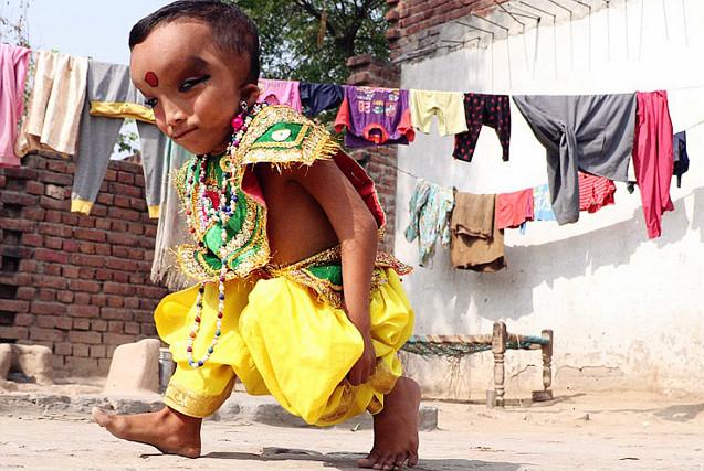 印度6岁男童长大头细长眼被奉为神灵