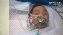 后续报道:女孩被养母砍成重伤