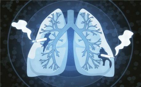 吸烟加吸霾,加速患肺癌