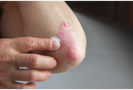 皮肤病瘙痒难耐?4种自然疗法帮你摆脱牛皮癣