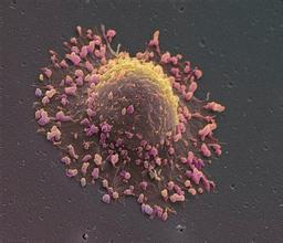 海外医疗帮患者免去癌症之痛