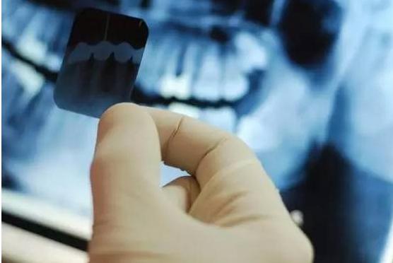 """牙科专家给出""""一生的护牙重点"""",不看后悔 - 上下四方宇的博客 - 上下四方宇的博客"""