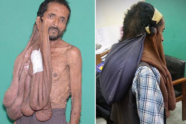 尼泊尔男子切除相伴47年面部肿瘤终解脱