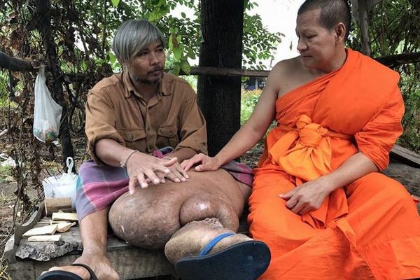 """泰国一男子因患病长""""象腿""""举步维艰"""