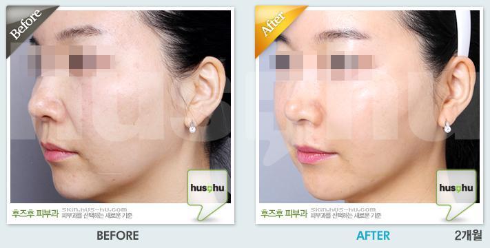 PRP水光针改善冬季皮肤问题