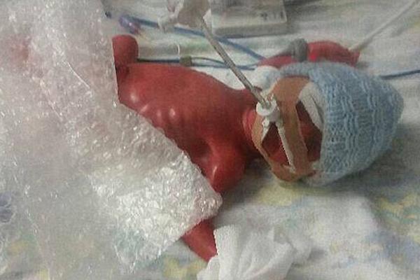 英25周早产双胞胎奇迹存活 日常气泡膜助其保暖