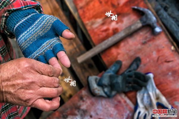 国际新闻 国际热点 正文  做杂工时,一根木刺扎到了袁道荣的手上.