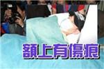 刘德华除盆骨受伤脊骨也受伤 靠止痛药镇痛