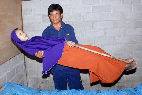 印尼女子患奇病 身体僵硬如木板