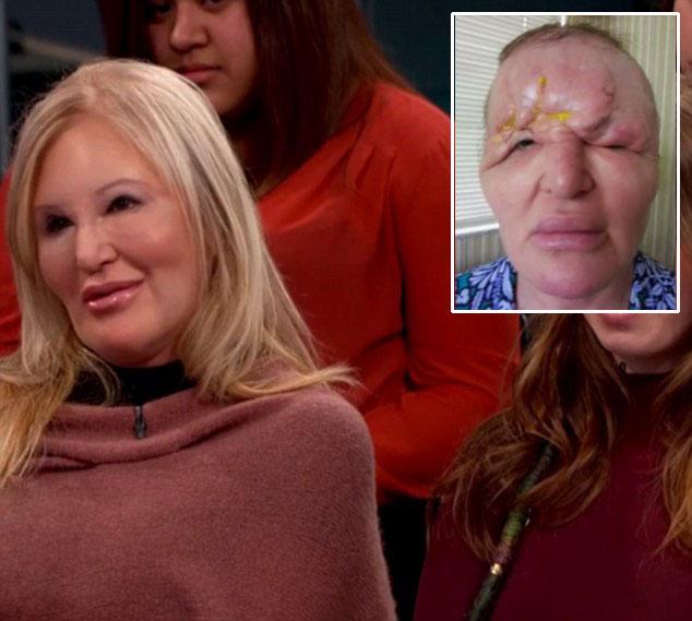 美中年女子整容手术失败 额头变形酷似外星人