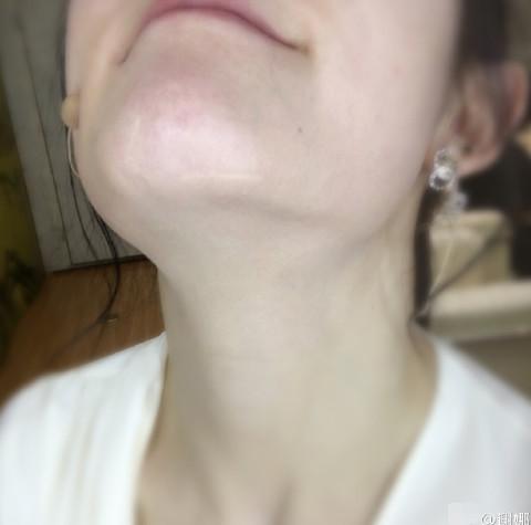 谢娜大方晒下巴的伤疤 她说受伤时曾血流成河