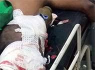 也门士兵被火箭弹穿身未爆炸