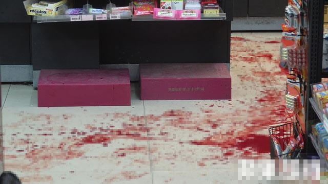 台少年抢劫便利店砍断店员左手 因自己伤势过重送医反被捕