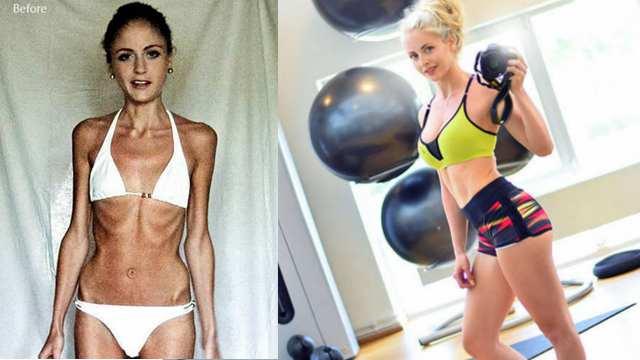 厌食症女孩坚持健身3年后变身火辣美女