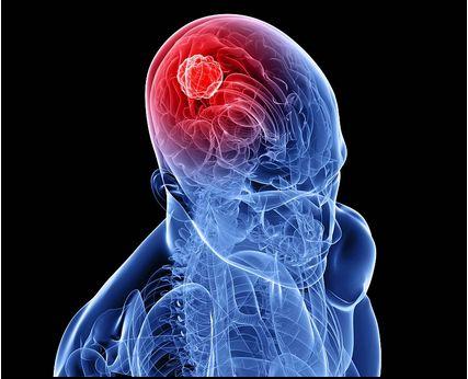 国外新技术激光应用于脑瘤切除术