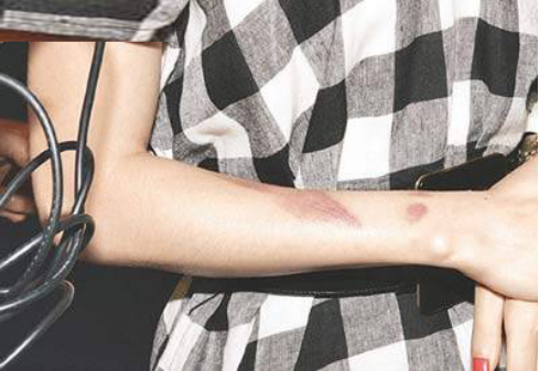 去除手臂疤痕最简单的方法