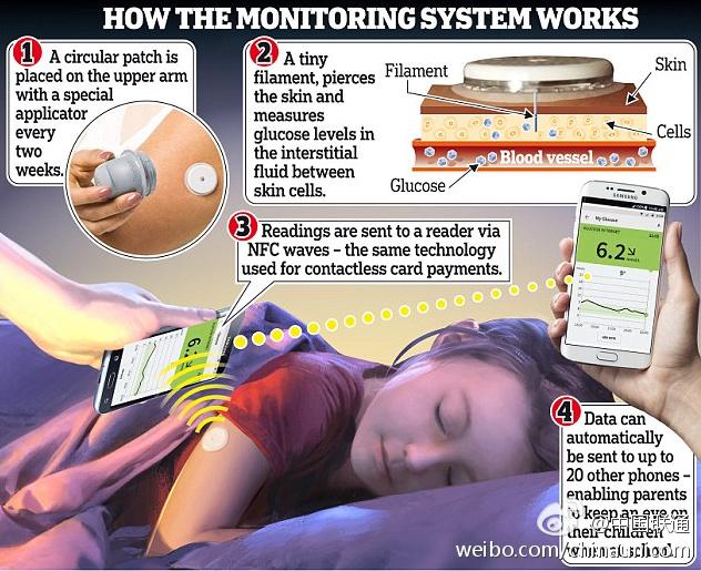 测量血糖的智能传感器,让糖尿病患者免受扎