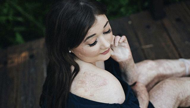 英国女孩全身60%烧伤:疤痕让我更美
