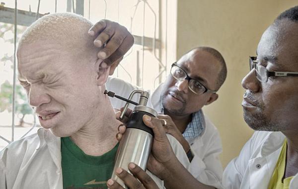 马拉维白化病患者悲惨境遇:受歧视被杀害肢解