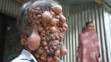 孟加拉男子得怪病全身长满神经纤维瘤