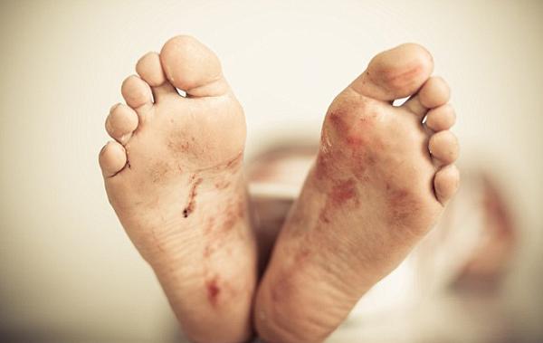 印少年被狗咬伤认定死亡后在去葬礼途中突然醒来