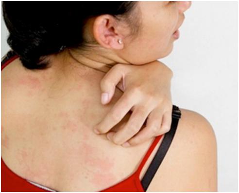 皮肤癣有什么症状,正确诊断认准偏方
