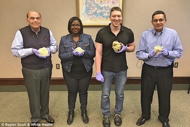 美医院让病人手捧被移植心脏 病人:看着像烤牛肉
