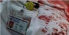 江苏省一医生被人刺数刀