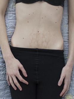 奥地利摄影师拍进食障碍患者生活
