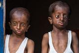 印度两兄弟身患怪病头部变形