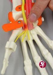 日本研发可修复末梢神经新材料 可直接缠绕在受损神经处