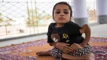 印女孩患罕见成骨不全症 骨头碎裂1000余次