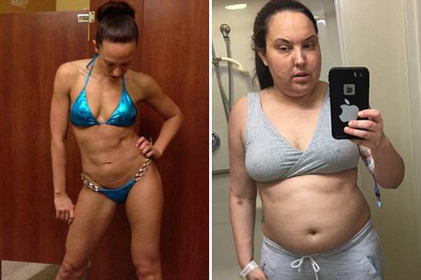 晴天霹雳!美比基尼模特患肿瘤 一年发胖38斤