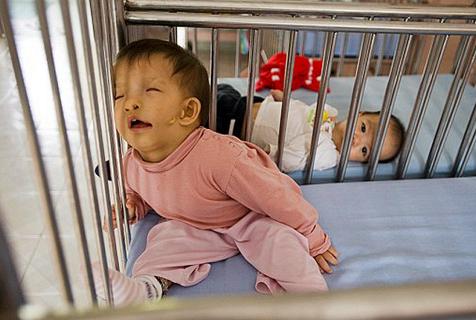 """""""橙剂""""遗害:越战化学试剂致婴儿畸形"""