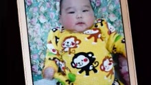 1岁男孩肚子疼手术取出3斤胎儿
