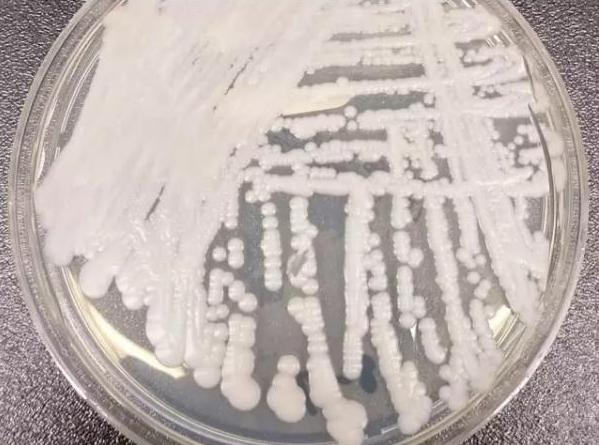 超级真菌现身 抗感染药准备好了吗?