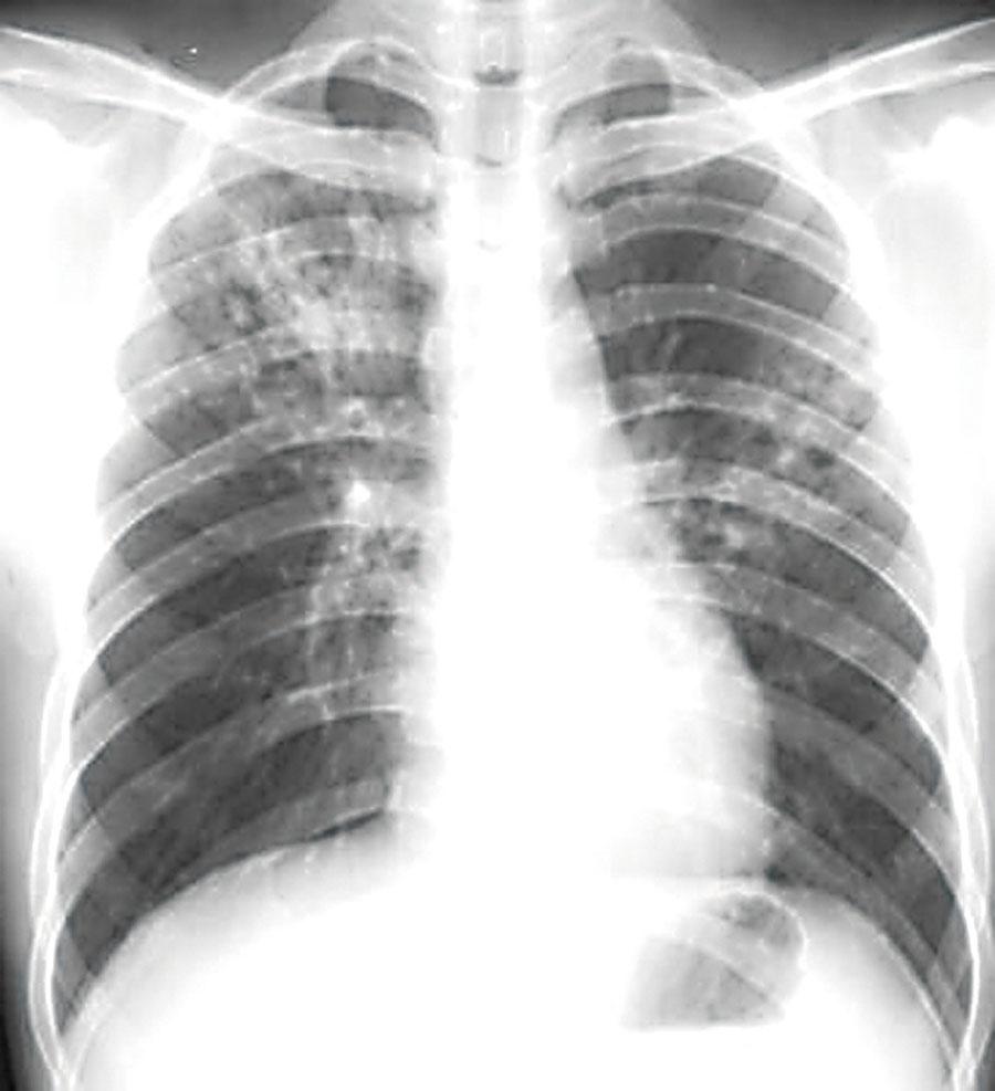 北京:肺结核仍呈高发势头