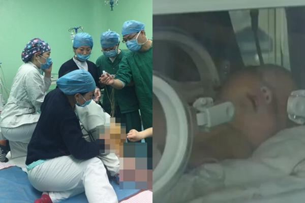 230斤产妇坐着剖腹产 多名医生跪着开刀