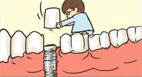 换牙门道多:种植义齿,固定义齿,活动义齿你都知道是啥吗?