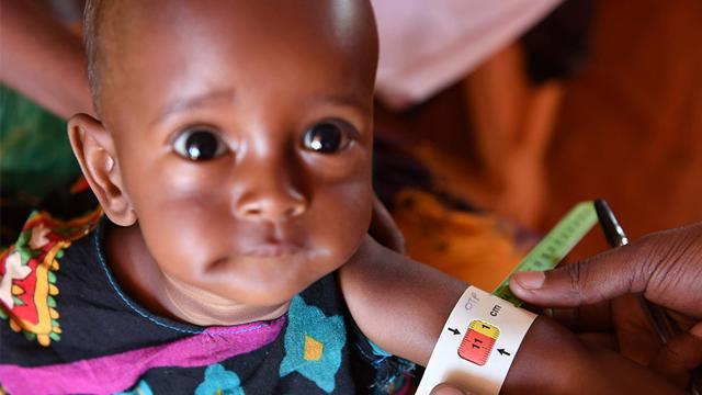 旱灾致严重急性营养不良的索马里儿童大幅增加