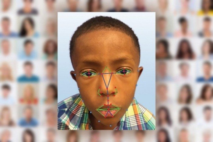 脸部识别可帮助医生检测罕见遗传病