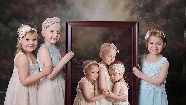 这三个孩子癌症康复后的照片,让人泪目!